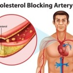 Dr.Manoj's Homeopathy Treatments For Cholesterol