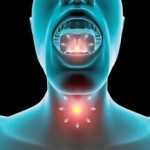 Homeopathy Treatments For Hoarseness
